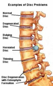 Slipped disc is easily cured through yoga